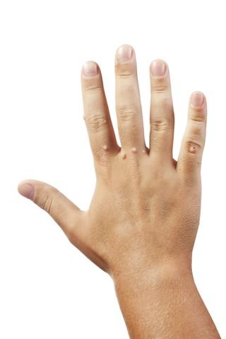 Как лечится шипица на пальце