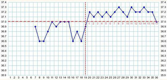 Расшифровка графика базальной температуры (БТ): Воспаление придатков