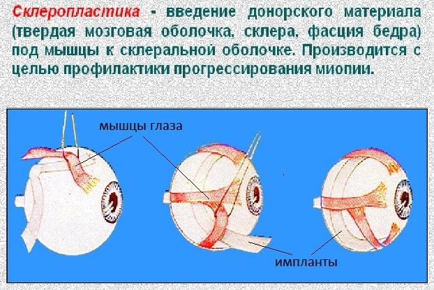 склеропластика глаз у детей