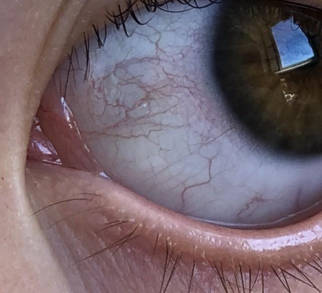 Покраснели белки глаз у ребенка