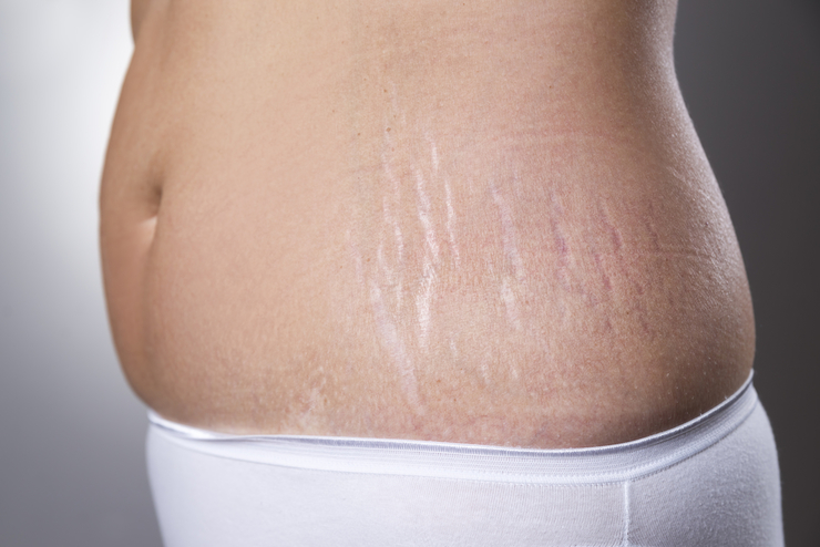 Масло при беременности от растяжек