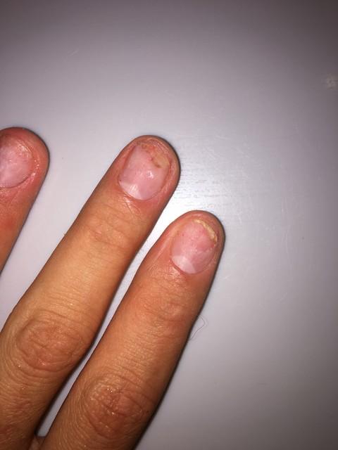 Как лечить грибок ногтей?