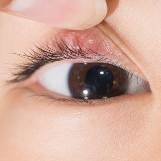 Что делать, если у ребенка появился ячмень на глазу